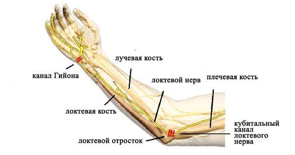 Бережіть руки, особливо коли у вас синдром кубитального каналу, інші ж вам не потрібні