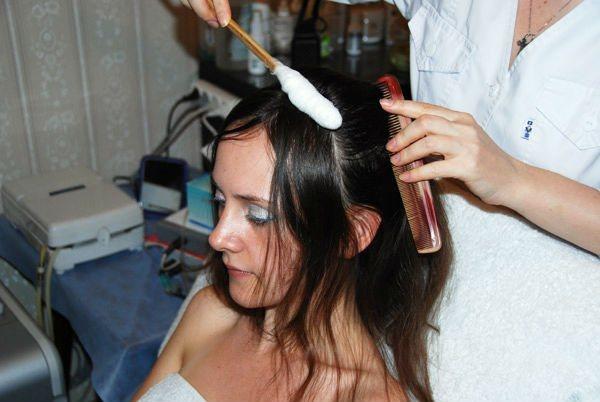 Лікування волосся: кріотерапія