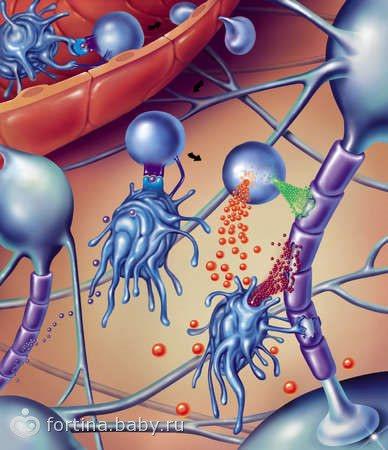 ЛФК при розсіяному склерозі: правила проведення та основний комплекс вправ