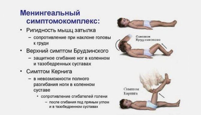 менінгеальні симптоми