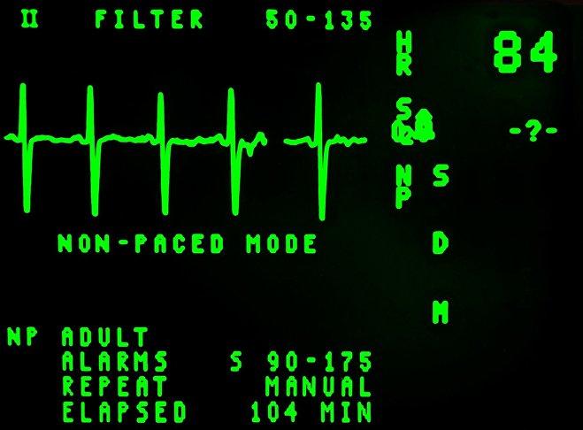 Норма серцевих скорочень у дорослої людини - 78 ударів в хвилину