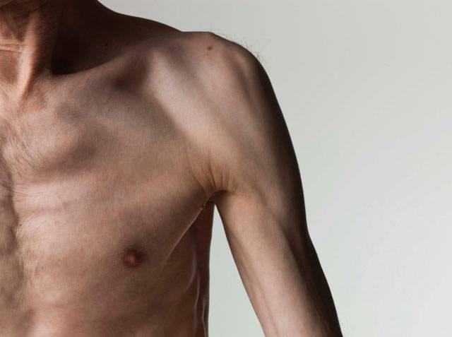 Види і лікування поліневриту нижніх кінцівок