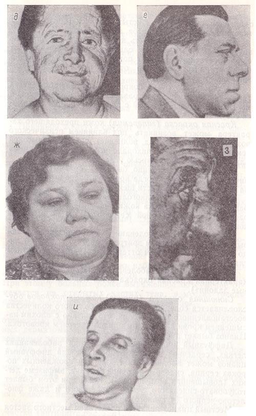 Вираз обличчя при мікседемі, акромегалії, захворюваннях нирок, алкоголізмі, «обличчя Гіппократа»